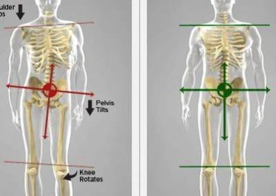 pelvic-lateral
